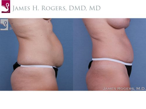 Abdominoplasty (Tummy Tuck) Case #59754 (Image 3)
