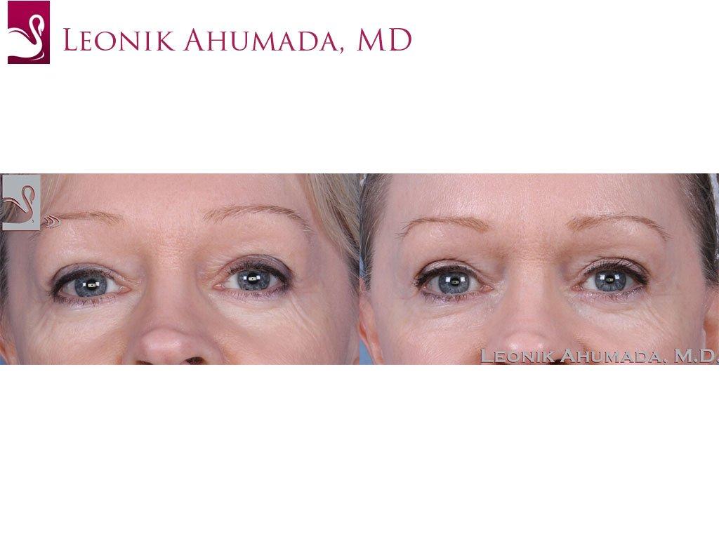 Eyelid Surgery Case #38783 (Image 1)