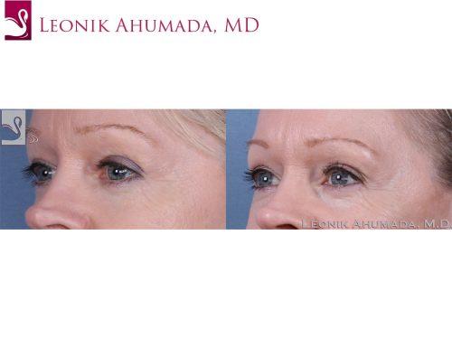 Eyelid Surgery Case #38783 (Image 2)