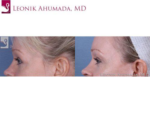 Eyelid Surgery Case #38783 (Image 3)
