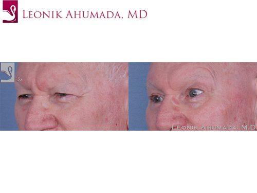 Eyelid Surgery Case #62661 (Image 2)