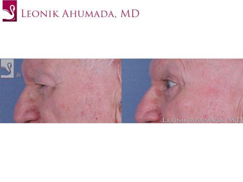 Eyelid Surgery Case #62661 (Image 3)