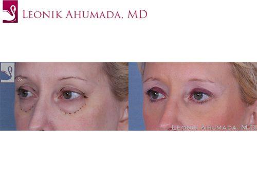 Eyelid Surgery Case #40054 (Image 2)