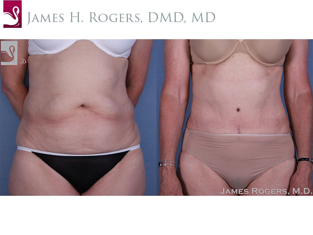 Abdominoplasty (Tummy Tuck) Case #17972 (Image 1)