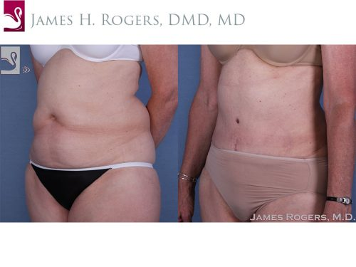 Abdominoplasty (Tummy Tuck) Case #17972 (Image 2)
