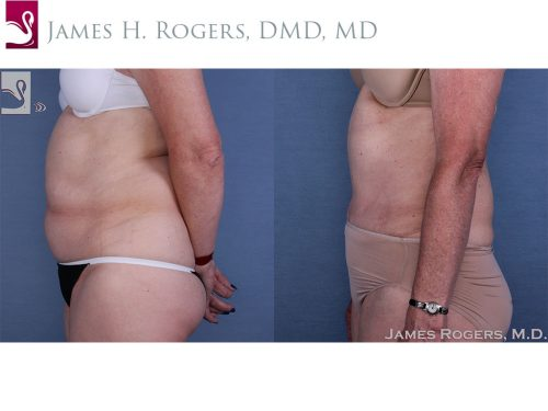 Abdominoplasty (Tummy Tuck) Case #17972 (Image 3)
