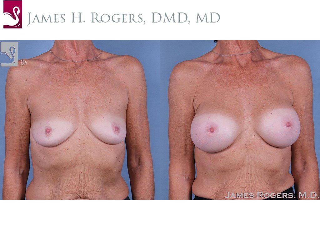 Breast Augmentation Case #63977 (Image 1)