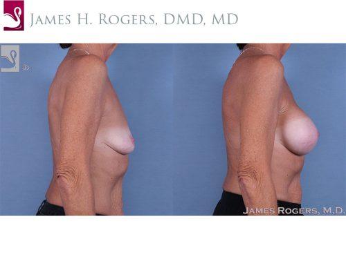 Breast Augmentation Case #63977 (Image 3)
