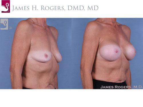 Breast Augmentation Case #63977 (Image 2)