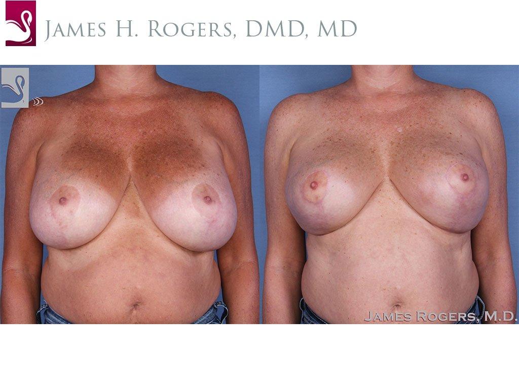 Female Breast Reduction Case #13784 (Image 1)
