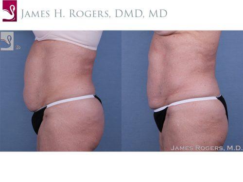 Liposuction Case #24966 (Image 3)