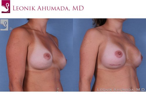 Breast Revisions Case #37932 (Image 2)