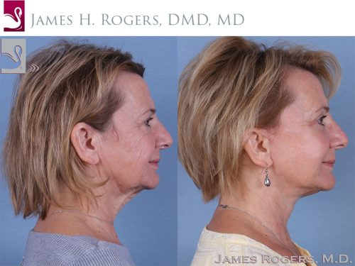 Face Lift Case #45284 (Image 3)