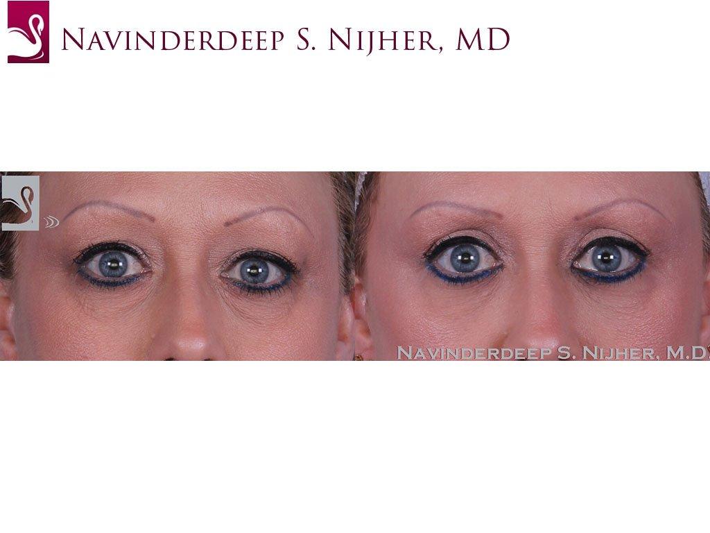 Eyelid Surgery Case #47153 (Image 1)