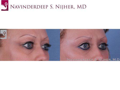 Eyelid Surgery Case #47153 (Image 2)