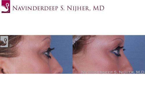 Eyelid Surgery Case #47153 (Image 3)