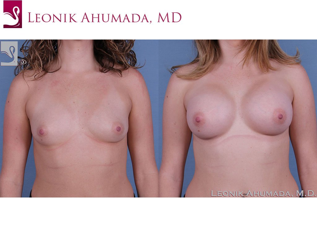Breast Augmentation Case #53716 (Image 1)