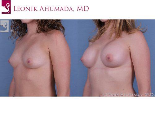 Breast Augmentation Case #53716 (Image 2)