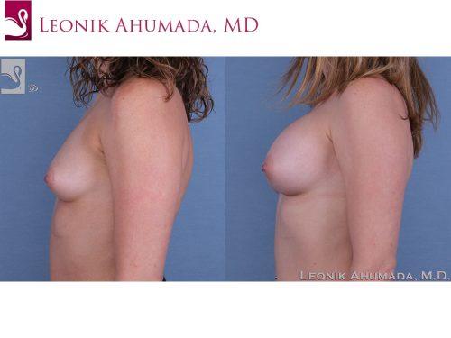 Breast Augmentation Case #53716 (Image 3)