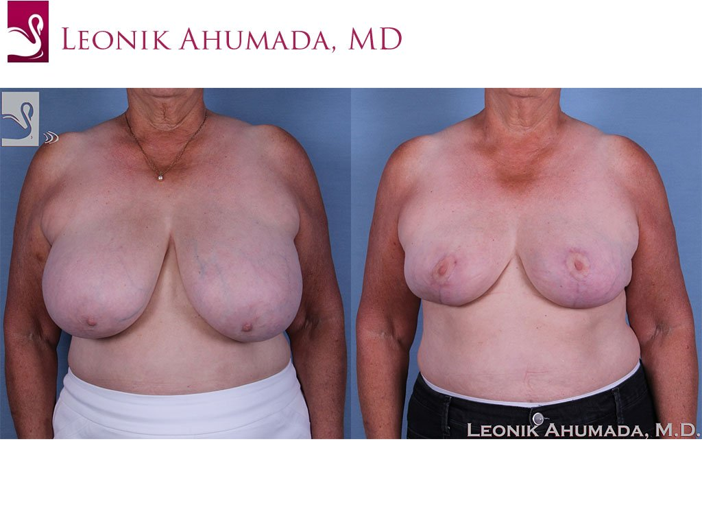 Female Breast Reduction Case #57285 (Image 1)