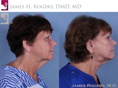 Face Lift Case #57509 (Image 3)