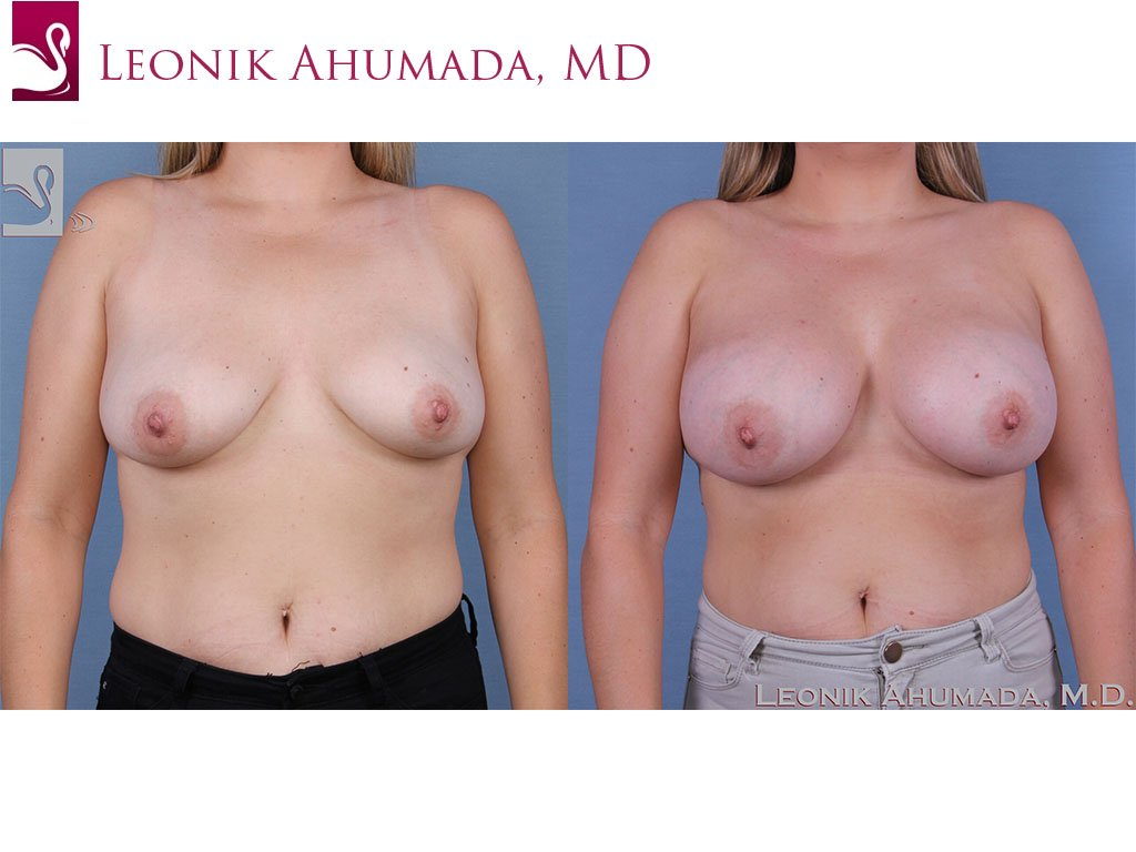 Breast Augmentation Case #58317 (Image 1)