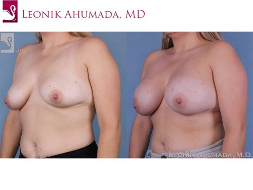 Breast Augmentation Case #58317 (Image 2)