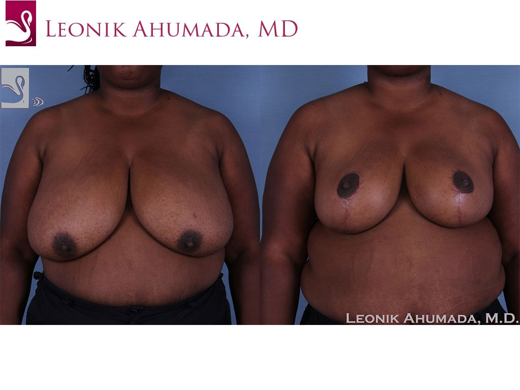 Female Breast Reduction Case #60754 (Image 1)
