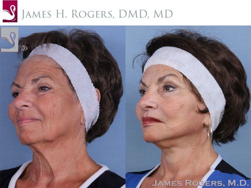 Face Lift Case #62473 (Image 2)