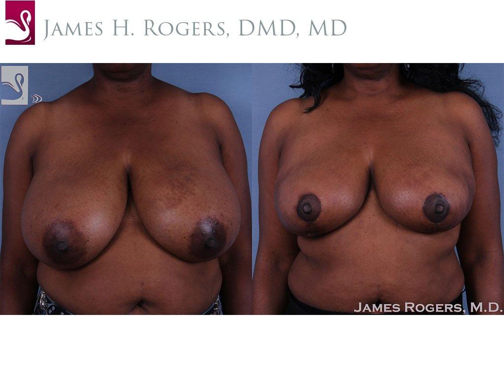 Female Breast Reduction Case #62515 (Image 1)