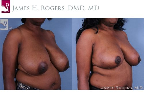 Female Breast Reduction Case #62515 (Image 2)