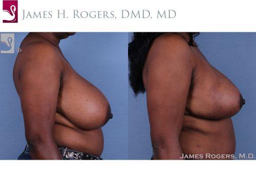 Female Breast Reduction Case #62515 (Image 3)