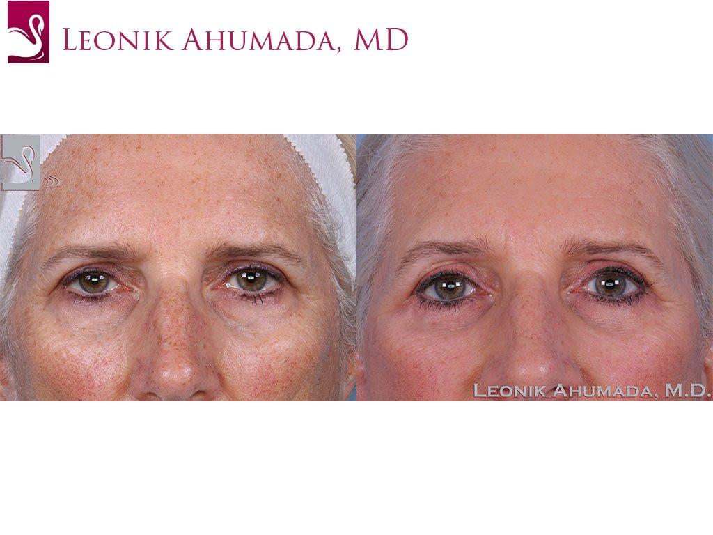 Eyelid Surgery Case #62547 (Image 1)