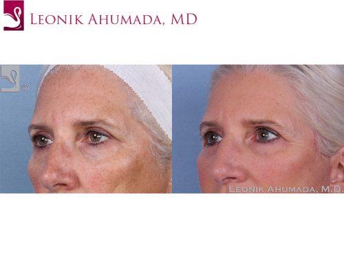 Eyelid Surgery Case #62547 (Image 2)