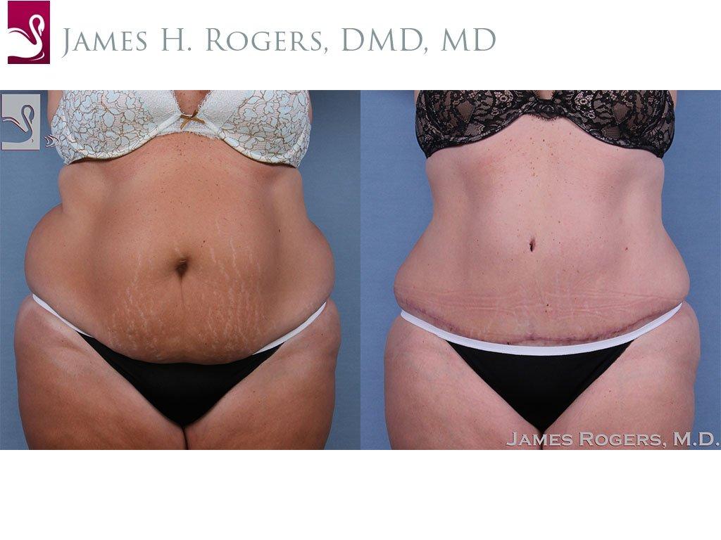 Abdominoplasty (Tummy Tuck) Case #62604 (Image 1)