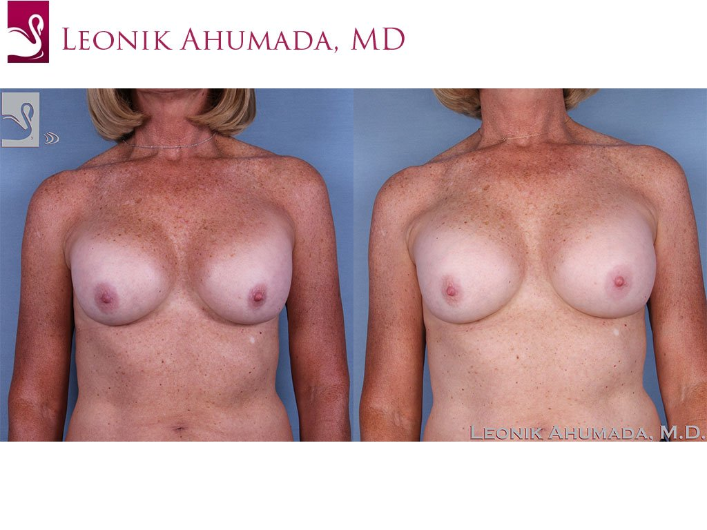 Breast Revisions Case #62979 (Image 1)