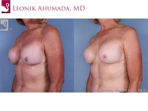 Breast Revisions Case #62979 (Image 2)