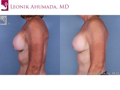 Breast Revisions Case #62979 (Image 3)