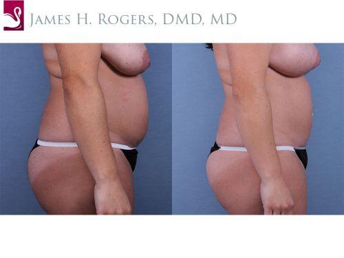 Abdominoplasty (Tummy Tuck) Case #63337 (Image 3)