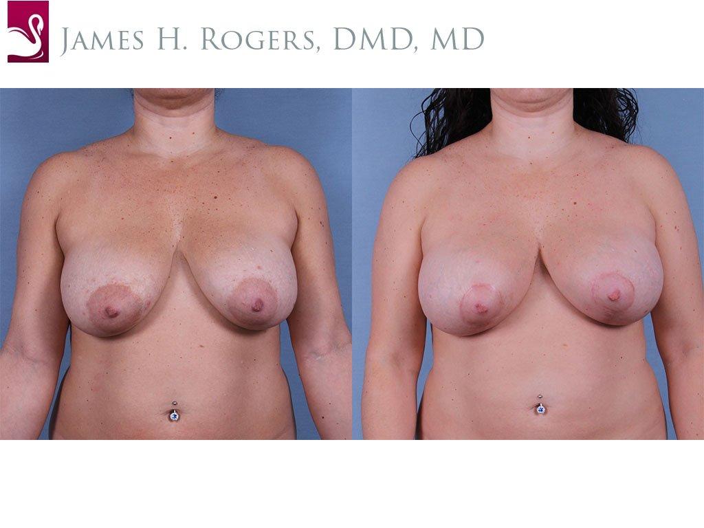 Breast Lift (Mastopexy) Case #63337 (Image 1)