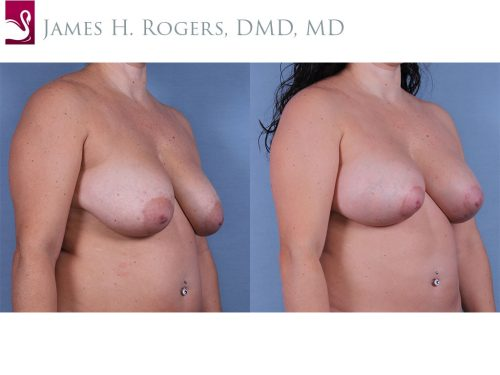 Breast Lift (Mastopexy) Case #63337 (Image 2)