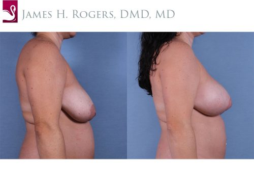 Breast Lift (Mastopexy) Case #63337 (Image 3)