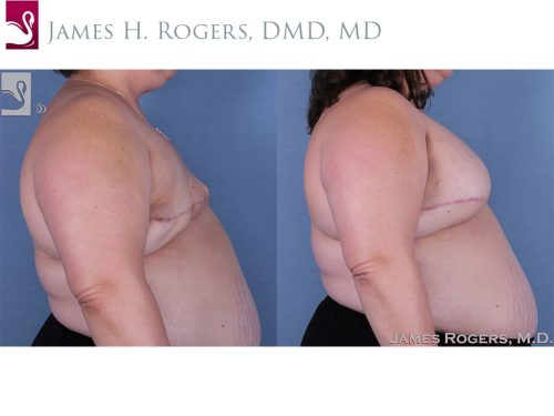 Breast Reconstruction Case #30932 (Image 3)