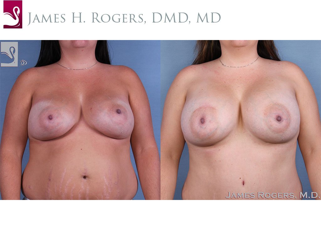 Breast Revisions Case #62794 (Image 1)