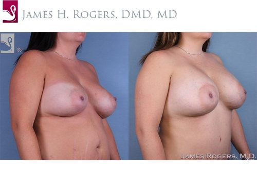 Breast Revisions Case #62794 (Image 2)