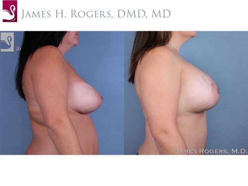 Breast Revisions Case #62794 (Image 3)