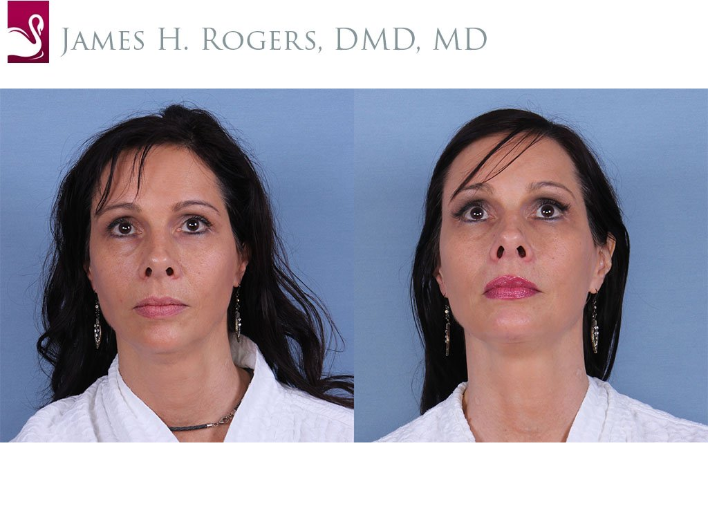 Facial Implants Case #31068 (Image 1)