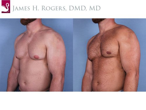 Male Breast Reduction Case #56146 (Image 2)