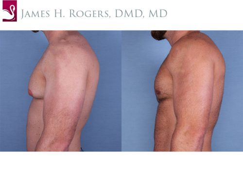 Male Breast Reduction Case #56146 (Image 3)