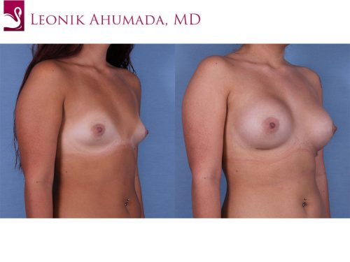 Breast Augmentation Case #60929 (Image 2)